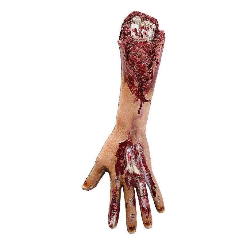 Bild på Avhuggen Arm med Köttsår